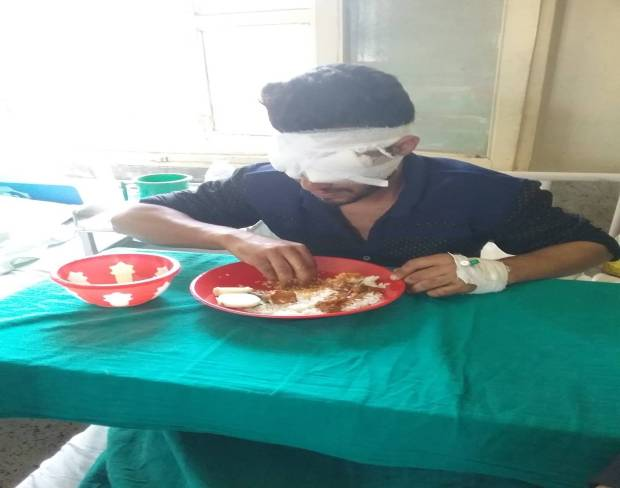 Sameer, a 15-year-old boy from Kupwara having his lunch blindfolded, with 2 pellets in his right eye and one in his left eye.
