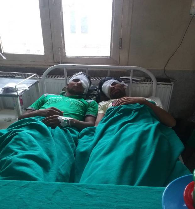 Adil, aged 15 years, and Farooq, 17 years, lying in their bed after the removal of pellets from their eyes in ward 09, SMHS Hospital, Srinagar .